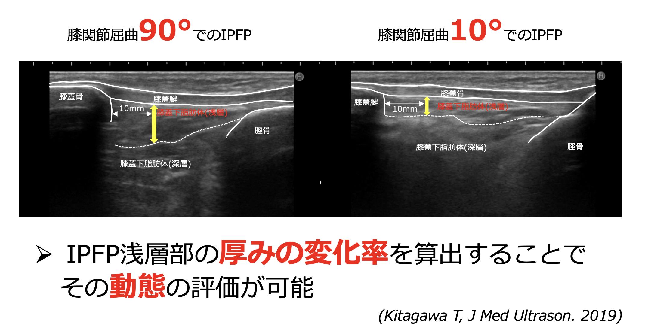 IPFP-3